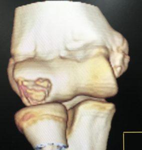 肘離断性骨軟骨炎の診断①