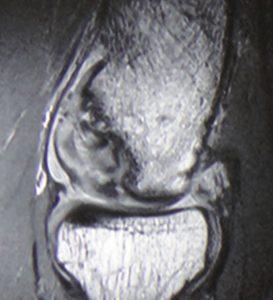 手術:上腕骨小頭離断性骨軟骨炎